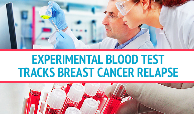 Cancer Detection Technology Shows Breast Cancer DNA In Blood Predicting Cancer Relapse