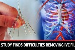 The Journal of the American Medical Association Discovered Complications With Retrievable IVC Filters