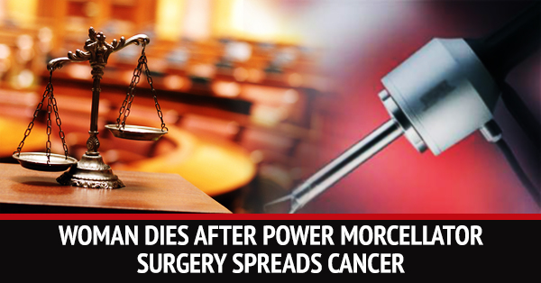 A New York Couple Filed Lawsuit Against Power Morcellators After A Hysterectomy Spread Stage 4 Uterine Cancer