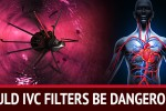 List of Possible Dangers Associated With IVC Filters