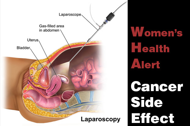 Laparoscopy Cancer Side Effects Lawsuit